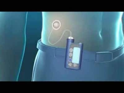Insulin Pump treatment in Diabetes (English)